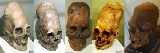 Resultados increíbles sobre los cráneos alargados de Paracas-00