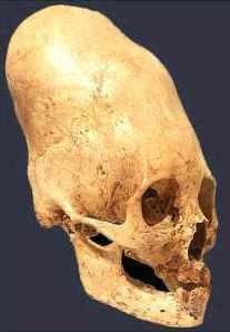 Resultados increíbles sobre los cráneos alargados de Paracas-99