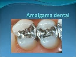 El impacto de las amalgamas dentales sobre la salud_Viaje Hacia Si Mismo_77